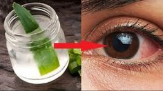Aloe Vera improves eyesight, but also cure or treat other eye disorders. Here is how to use aloe Vera gel to improve eyesight naturally. Health Remedies, Home Remedies, Natural Remedies, Homeopathic Remedies, Blueberry Juice, Eye Sight Improvement, Vision Eye, Eyes Problems, Health Problems
