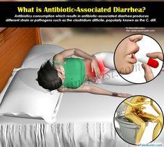 What is Antibiotic-Associated Diarrhea & How Long Does it Last? Stop Diarrhea, Abdominal Pain, Upset Tummy