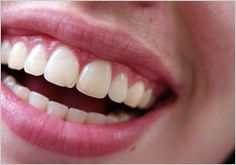 Having an appealing smile could improve your #oralhealth, #selfesteem, and #career. Learn how, here: http://sanadental.ca/why-a-better-smile/ #smile #dentistry #EdmontonDentist