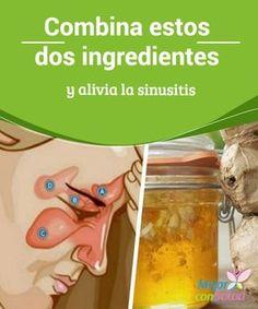 Combina estos dos ingredientes y alivia la sinusitis  Los senos paranasales son cavidades óseas llenas de aire que se encuentran ubicadas dentro del cráneo, cerca de la nariz.
