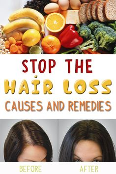Hair loss is a very serious issue that women, after a certain age, have to face with. In this sense, there are different causes that you should avoid.