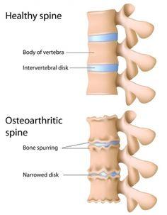 Spinal Osteoarthritis (Spondylosis)