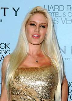 Heidi Montag: Heidi famously underwent 10 procedures in one day – and nearly died.
