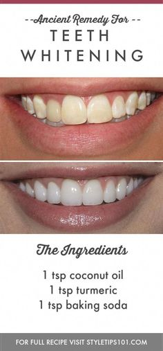 Skin Beauty Remedies Teeth Whitening - This ancient remedy for teeth whitening will help rebuild tooth enamel while making them as bright and shiny as they once were. Beauty Skin, Health And Beauty, Beauty Care, Face Beauty, Diy Beauté, Sell Diy, Tooth Enamel, Natural Teeth Whitening, Skin Whitening