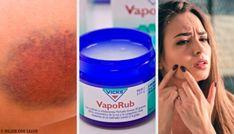 11 εκπληκτικές χρήσεις για το διάσημο Vicks VapoRub Vicks Vaporub, Cleaning Supplies, Wicked, Healthy Living, Health Fitness, Personal Care, Clever, Benefits Of Massage, Home Remedies