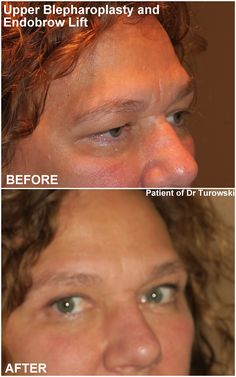 Eyelid Lift, Eyelid Surgery, Pictures, Photos, Drawings