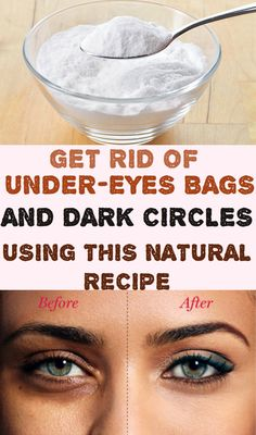 Dark circles under the eyes are a very common problem. All of us faced this problem, at least once in a lifetime. There are many reasons, which can lead to develop those under eye bags or dark circles.