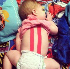 Uneori si bebelusi au nevoie de kttape, acesta aplicatie este destinata pentru a consolida muschii slab dezvoltati ai spatelui. http://kttape.ro