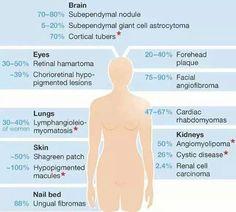 Graphic of Tuberous Sclerosis manifestations