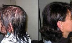 ESTA MUJER SE HIZO ESTE TRATAMIENTO CASERO Y SU CABELLO CRECIÓ EN CUESTIÓN DE DÍAS. INCREIBLE!! Stop Hair Loss, Prevent Hair Loss, Make Hair Thicker, Cabello Hair, Natural Hair Styles, Long Hair Styles, Hair Repair, Tips Belleza, Hair Loss Treatment