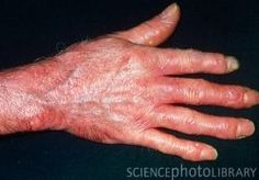 CREST syndrome is an acronym for 5 cardinal features of the condition namely: C - Calcinosis R - Raynaud's Phenomenon E - Esophageal Dysmotility S - Sclerodactyly T - Telangiectasia These 5 different signs and symptoms of the condition may. Chronic Fatigue Treatment, Chronic Fatigue Symptoms, Chronic Fatigue Syndrome, Raynaud's Disease, Autoimmune Disease, Sin Gluten, Crest Syndrome, Raynaud's Phenomenon, Gut Inflammation