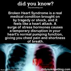 Broken Heart Syndrome is a real medical condition brought on by tragedy or shock, and it feels like a heart attack. A surge of stress hormones causes a temporary disruption in your heart's normal. Real Life Quotes, New Quotes, Causes Of Heart Attack, Broken Heart Syndrome, Shortness Of Breath, Power Of Positivity, Healthy Lifestyle Tips, Psychology Facts, Way Of Life