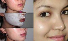 Usted puede encontrar numerosos productos en el mercado que ayuden a quitan las manchas en la piel, pero desafortunadamente, todos ellos tienen fuertes productos químicos, que finalmente hacen más daños a la piel en lugar de beneficiarla.