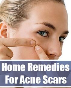 Fade acne scar with 5 homemade masks