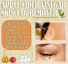 DIY Skin Tag Remover! Did you know? You can use Apple Cider Vinegar< tea Tree oil and Lemon Juice to get rid of Skin Tags Naturally... How? Combine 4 drops of organic apple cider vinegar, 4 drops of tea tree oil, & 6 drops of fresh organic lemon juice in