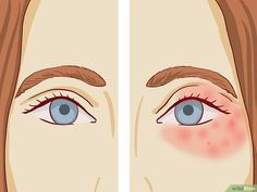 """How to Treat Eczema Around the Eyes. Eczema is a catch-all phrase for several skin problems. These include """"contact dermatitis,"""" a skin reaction to an allergen or harsh substance, but eczema around the eyes is usually """"atopic"""" dermatitis,. Eye Eczema, Eczema On Eyelids, Severe Eczema, Eczema Symptoms, Dry Skin Around Eyes, Eczema Around Eyes, Scalp Psoriasis Treatment, Young Living Oils, Allergies"""