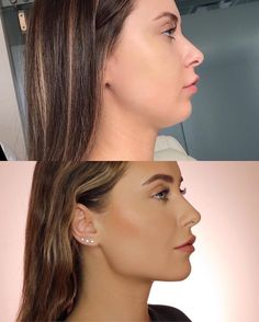 Cheek Fillers, Botox Fillers, Dermal Fillers, Face Plastic Surgery, Celebrity Plastic Surgery, Chin Liposuction, Relleno Facial, Chin Filler, Jaw Line