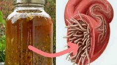El increíble tónico de limpieza que tengo para ti hoy puede eliminar las bacterias en tu sistema. Es un poderoso agente antiséptico y antifúngico que mejora el flujo sanguíneo y linfático en todo el cuerpo.