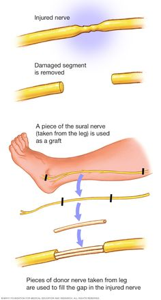 Brachial plexus injury - Diagnosis and treatment Forearm Anatomy, Peripheral Nerve Injury, Nerve Conduction Study, Magnetic Resonance Imaging, Muscle Function, Back Injury, Spinal Cord, Nerve Pain, Medical History