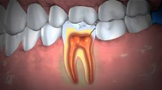 Treatment of Abscessed Teeth A video from the American Dental Association. Preventive Dentistry, Sedation Dentistry, Implant Dentistry, Dental Implants, Abcessed Tooth, Dental Videos, Gum Disease Treatment, Dental Health, Dental Care
