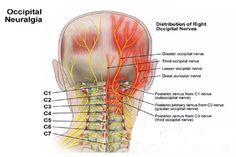 Qu'est ce que la névralgie occipitale et comment elle est liée à  la fibromyalgie, en plus de la douleur chronique et la fatigue, devrait être la façon dont on risque avec la fibromyalgie de nombreuses autres affections telles que…