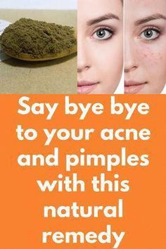 Acne and also Pimples Remedies. All-natural means to get rid of and stop Acne. Warts Remedy, Pimples Remedies, Natural Acne Remedies, Home Remedies For Warts, Arthritis Remedies, Holistic Remedies, Homeopathic Remedies, Warts On Hands, Warts On Face