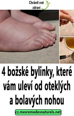 4 božské bylinky, které vám uleví od oteklých a bolavých nohou Detox, Health, Fitness, Weights, Health Care, Salud