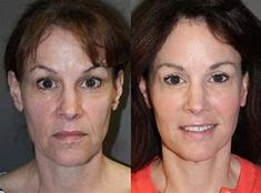 Hyaluronic acid fillers like Restylane and Juvederm help to restore lost volume to regions of the face by filling out wrinkles and fine lines. There is no proof that these treatments make wrinkles worse. Cheek Fillers, Dermal Fillers, Hyaluronic Acid Fillers, Acne Scars, Restore, Lost, Medical, Skin Care, Face