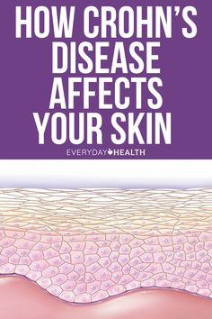 Along with wreaking havoc on your digestive system, Crohn's disease can cause skin problems like redness, bumps, and blisters.