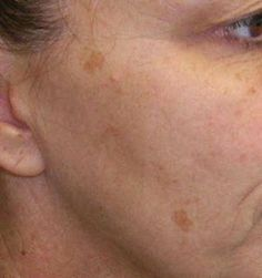 Natural Home Remedies for Brown Spots