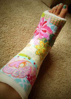 Decorated leg cast images galleries for Arm cast decoration ideas