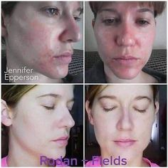 Check out Jennifer's SIX WEEKS results after using Unblemish. She has since added in Reverse. Results like these never cease to surprise me, but each time I see a life-changing transformation like this... I can't help but be in awe of these products! Message me to help you get the best skin of your life!  indra.arman@gmail.com