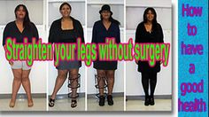 Looking for a Permanent Remedy for Bow Legs - Without the Need for Surgery? Read on to discover exactly what you need to do to fix your bow legs once and for all, and enjoy perfectly straight and attractive legs for the rest of your life! Knock Knees Correction, Bow Legged Correction, Straightener, Surgery, Bows, Fitness, Rest, Life, Skin Whitening