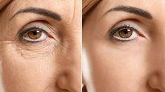 Secret of beauty: Super mask around dark circles and bag … – Face Care Ideas Beauty Secrets, Diy Beauty, Beauty Makeup, Beauty Hacks, Remover Manchas, Eye Wrinkle, Neutrogena, Dark Circles, Face Care