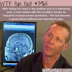 Man acquires musical skills after hitting his head - WTF fun facts