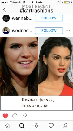 Plastic Surgery Photos, Plastic Surgery Procedures, Celebrity Plastic Surgery, Cosmetic Procedures, Kardashian, Facial Cosmetic Surgery, Celebrity Look Alike, Celebs Without Makeup, Christina Model