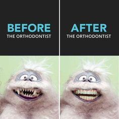 Can you name this patient? Do you think the before picture looks abominable and the after looks delightful?