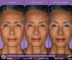 """Is """"Angry Face Syndrome"""" sabotaging your looks? Try Botox or Dysport, both available at Lakes Dermatology and injected by F. Victor Rueckl, M.D., board-certified dermatologist."""