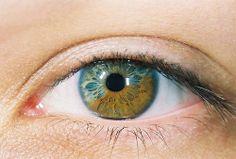 sectoral heterochromia (Irises with dual colors)