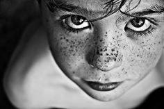 Child's freckles