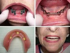 how to tell if someone has dentures