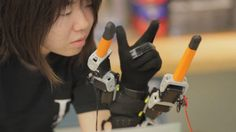Desarrollan prótesis robótica para agregar dos dedos a lamano