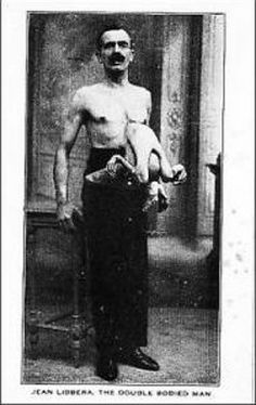"Jean Libbera - AKA ""The Double-Bodied Man,"" had his brother, Jacques Libbera, connected to his from his chest-stomach area. He was born in Rome. The parasitic twin was alive and could move as well. Old Photos, Vintage Photos, Freak Show Circus, Creepy Photos, Strange Pictures, Sideshow Freaks, Conjoined Twins, Human Oddities, Paranormal"