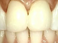 Schöne weiße und gesunde Zähne sind ein Traum, der durch moderne zahnmedizinische Behandlungsmöglichkeiten Wahrheit werden kann. Die Ästhetik ist heute übergreifend in die Behandlungssystematik integriert. Ästhetische Zahnmedizin wird angewandt bei Verfärbungen, leichten Zahnform- und Zahnstellungskorrekturen, bei der Behandlung von Karies und Frakturen, der Erneuerung von alten oder defekten Restaurationen. Sie umfasst minimalinvasive Therapien, wie das schonende Aufhellen von Zähnen (Bleac...