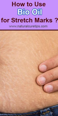 How to Use Bio Oil for Stretch Marks