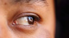 Blind woman fitted with 'bionic eye' sees for first time in 6yrs  http://pronewsonline.com  © Navesh Chitrakar