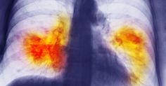 A new study from the British Lung Foundation says 700,000 people are admitted to hospital with lung disease in the UK every year
