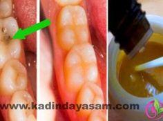 Diş çürüklerini bile iyileştiren çok güçlü doğal macun