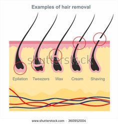 Examples of hair removal: waxing, shaving, tweezers, creams, wax