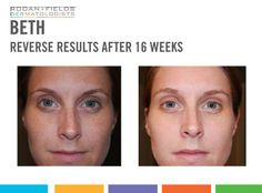 Reverse Results after 16 weeks!  Clean the slate and see a brighter future for your skin. Exposure to the sun and the environment can leave you with less-than-youthful skin. Erase the appearance of premature aging, including brown spots, dullness and discoloration with REVERSE. REVERSE Regimen exfoliates, visibly brightens, reduces the appearance of fine lines and wrinkles and defends against sun exposure for a long-term solution for a radiant complexion.